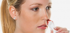 Nose Bleeds In Teens – Everything You Need To Know