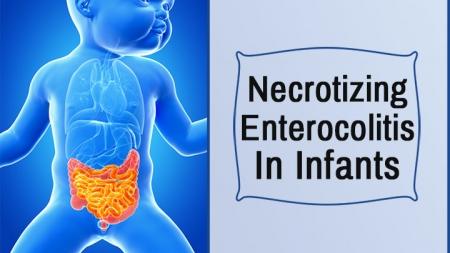 Necrotizing Enterocolitis In Infants – Symptoms, Diagnosis & Treatments