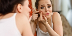 12 Easy Steps To Treat Teenage Acne At Home