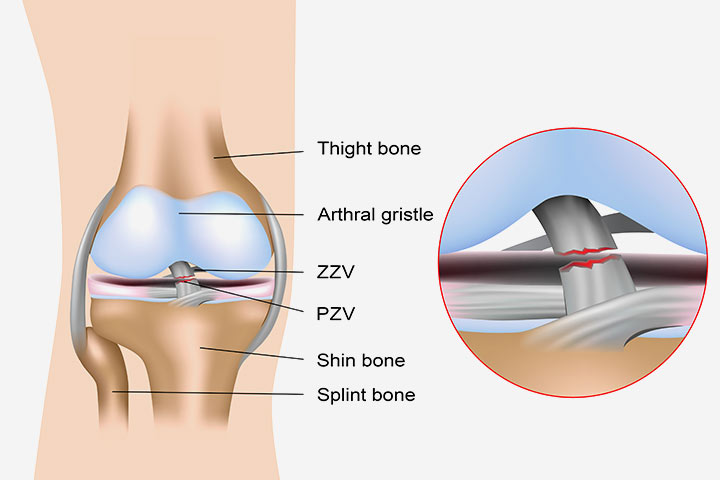 Anterior Cruciate Ligament Injury – Causes, Symptoms & Treatments