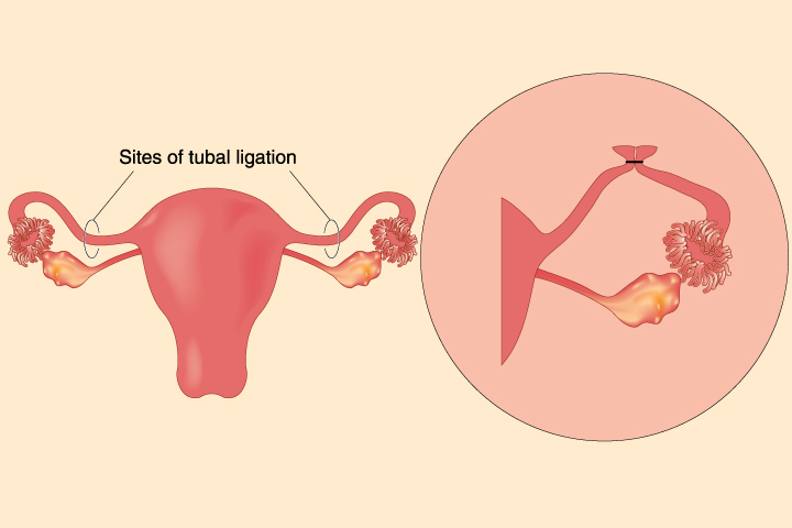 What Are The Chances Of Pregnancy After Tubal Ligation?