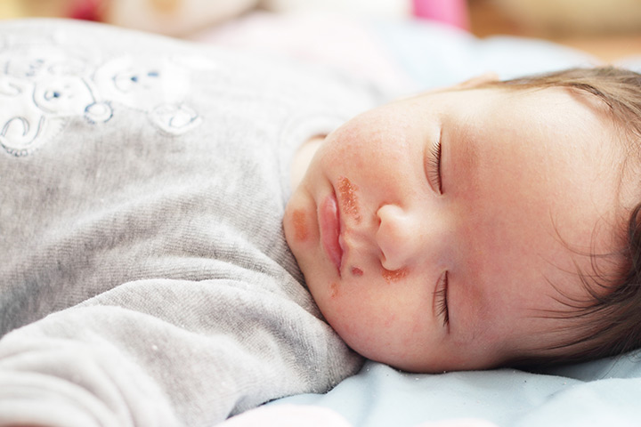 Impetigo In Infants And Toddlers – 4 Causes, 5 Symptoms & 8 Treatments You Should Be Aware Of
