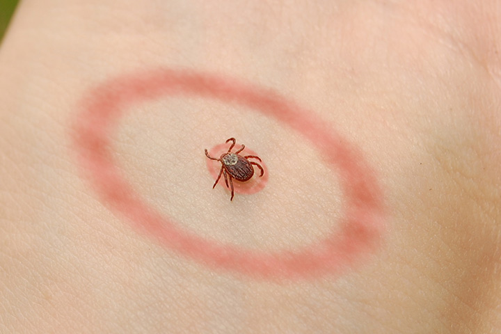 Lyme Disease In Toddlers – Symptoms & Treatments You Should Be Aware Of