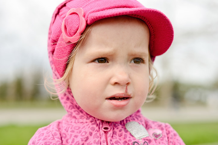 9 Unexpected Causes Of Nosebleed In Toddlers