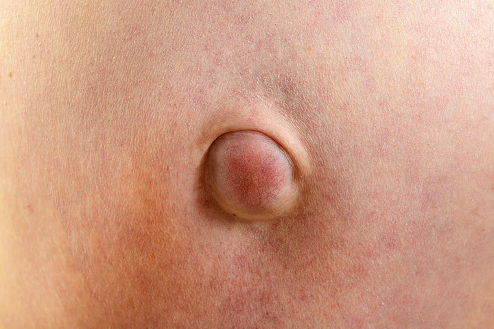Umbilical Hernia After Pregnancy – Causes And Symptoms You Should Be Aware Of