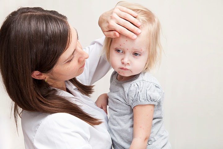 Measles In Toddlers – 3 Causes, 9 Symptoms & 8 Treatments